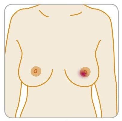 7 симптомов, которые могут оказаться раком груди